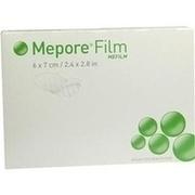 MEPORE Film 6x7 cm